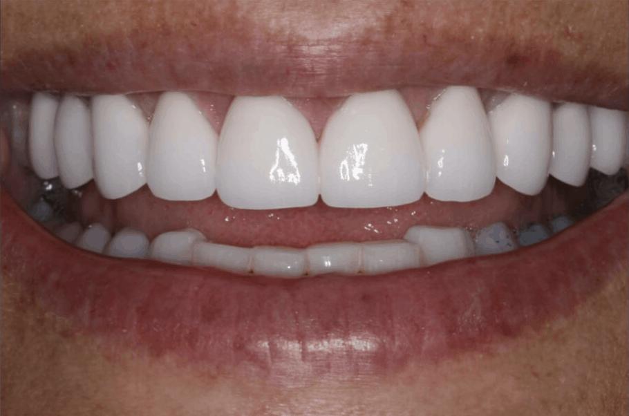 dental veneers porcelain danbury ct