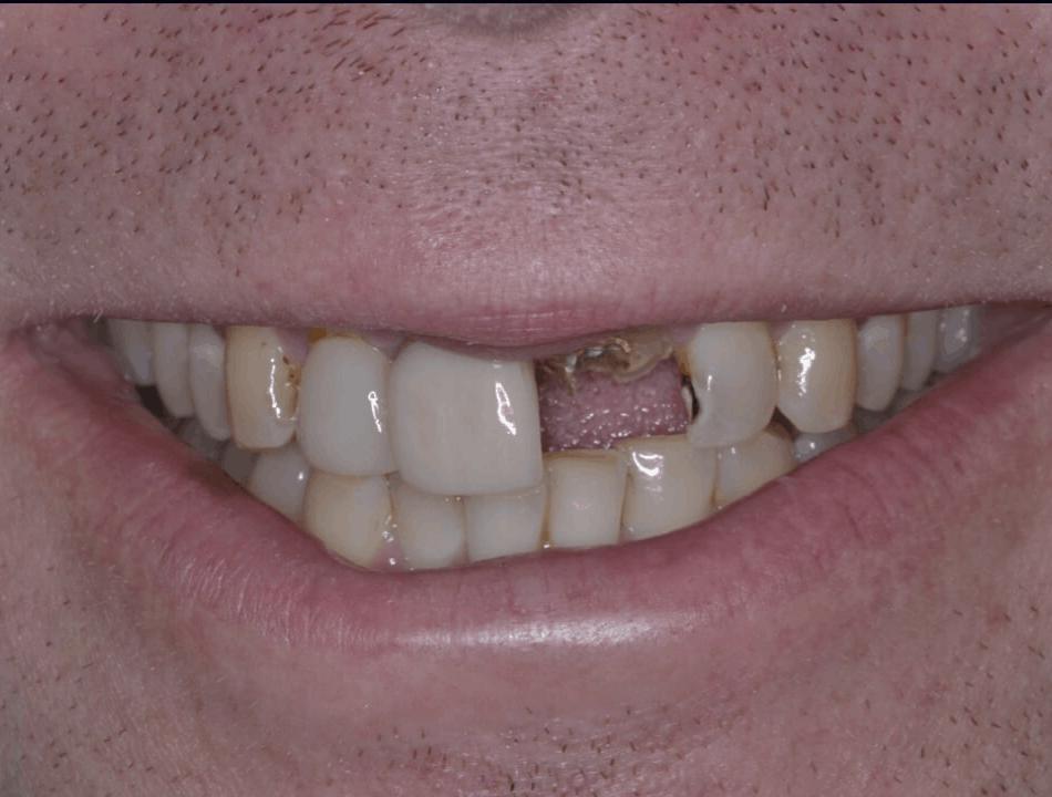 before emax implant crown danbury ct