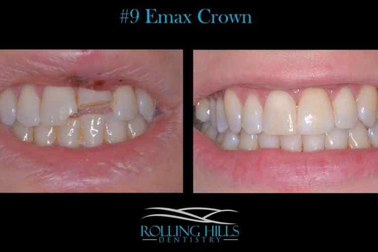emax crown