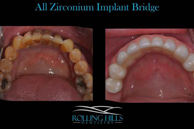 06810 dental implants