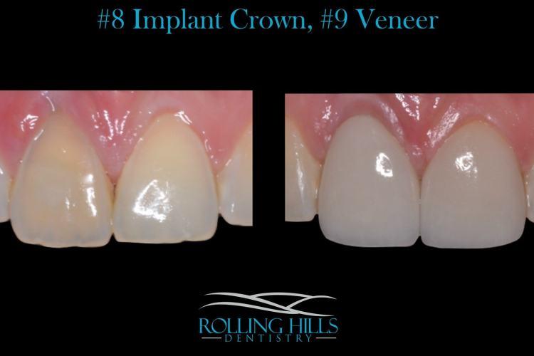 implant crown and veneer danbury ct