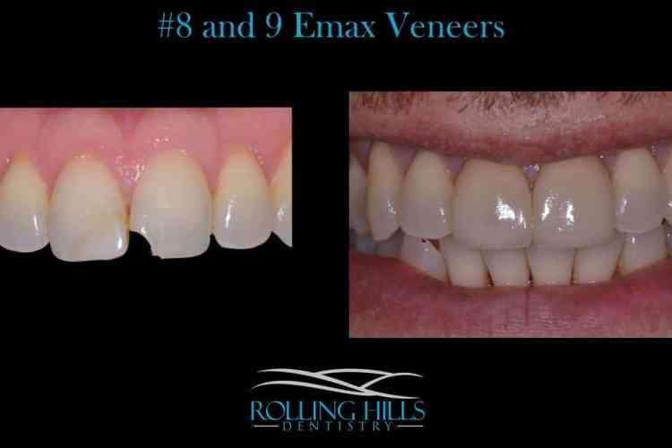 porcelain dental veneers ct