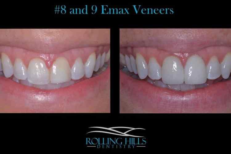 porcelain dental veneers danbury ct