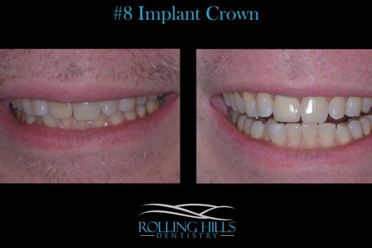 dental implant crown ct