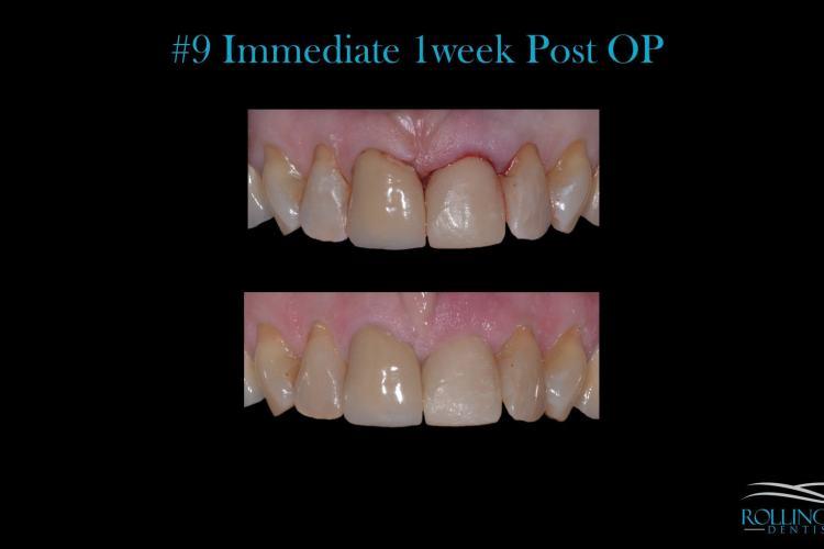 dental implants ct