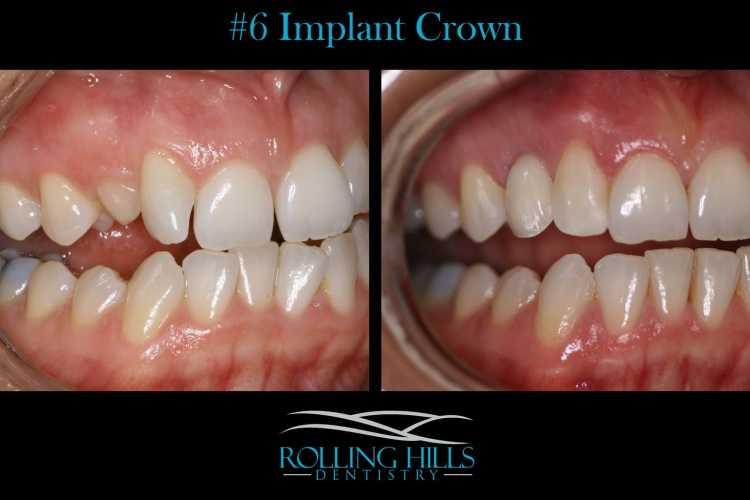 dental implant crown danbury ct