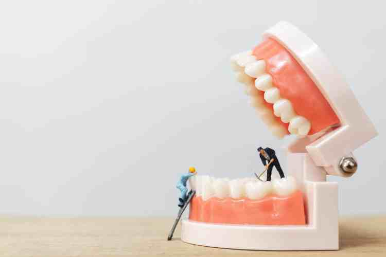 dental implants vs. dental veneers