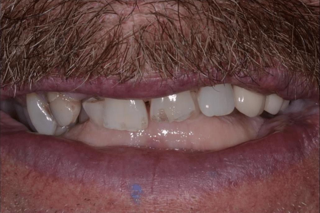 before dental implant restoration