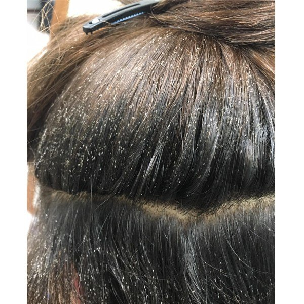 The Best Here Are 7 Myths About Lice That Should Know About Pictures