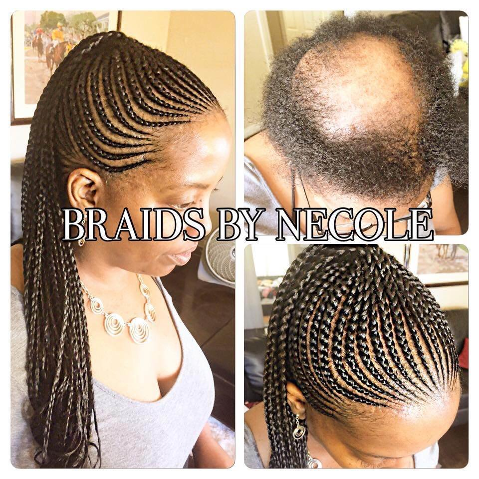 The Best 14 Extraordinary Alopecia Camouflage Cornrows By Braids By Necole Black Hair Information Pictures
