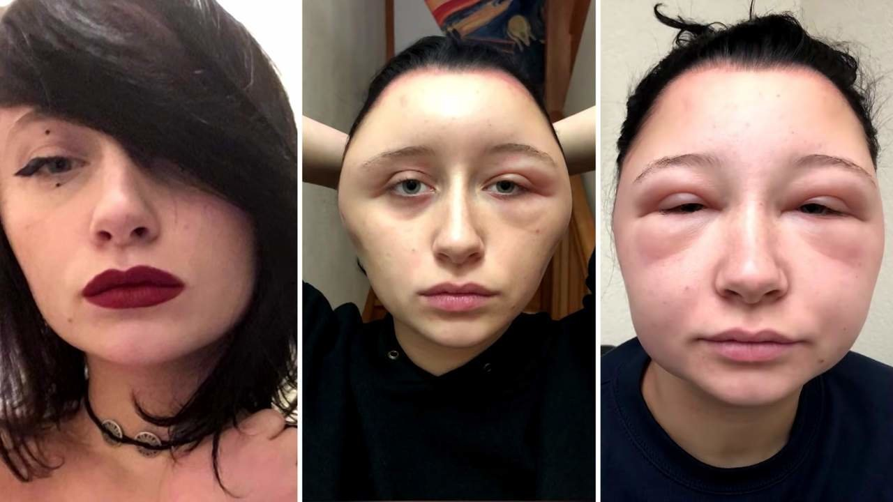 The Best Woman's Head Doubled In Size After Allergic Reaction To Ppd In Hair Dye Health Pictures