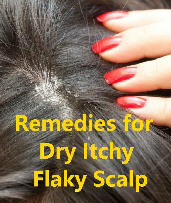 The Best Best 25 Flaky Scalp Ideas On Pinterest Dry Flaky Scalp What Causes Dry Scalp And Itchy Scalp Pictures