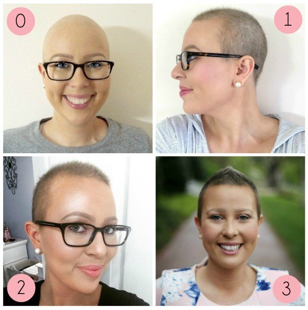The Best Post Chemo Hair Growth Styling Tips My Cancer Chic Pictures