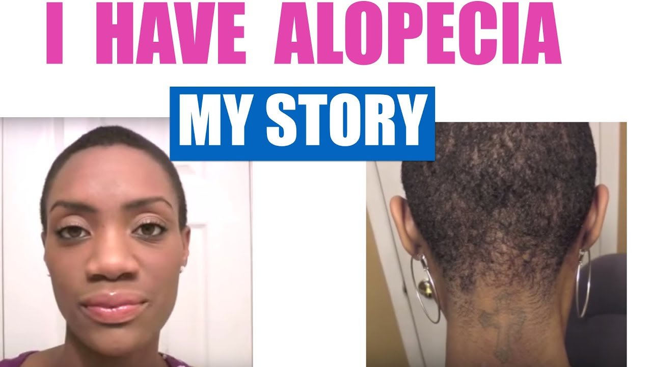 The Best Alopecia Areata My Hair Loss Journey With Pictures