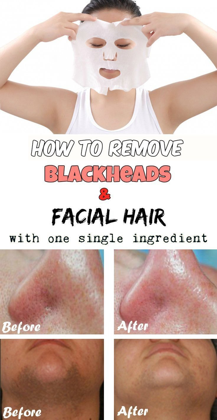 The Best How To Remove Blackheads And F*C**L Hair With One Single Pictures