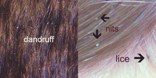 The Best Lice Vs Dandruff Nits Dry Scalp What S The Difference Pictures