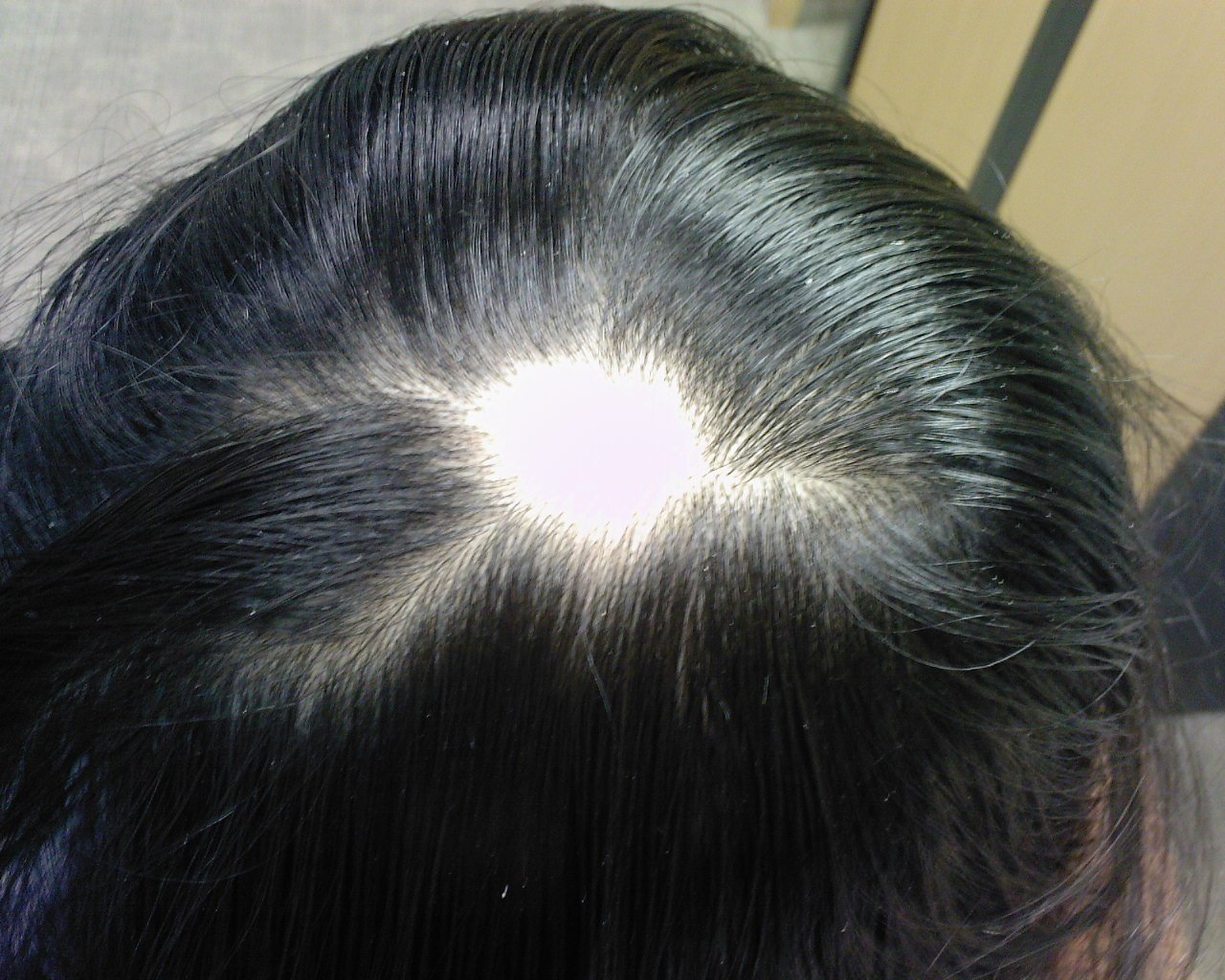 The Best Hair Loss Dr Kenton Busch Pictures