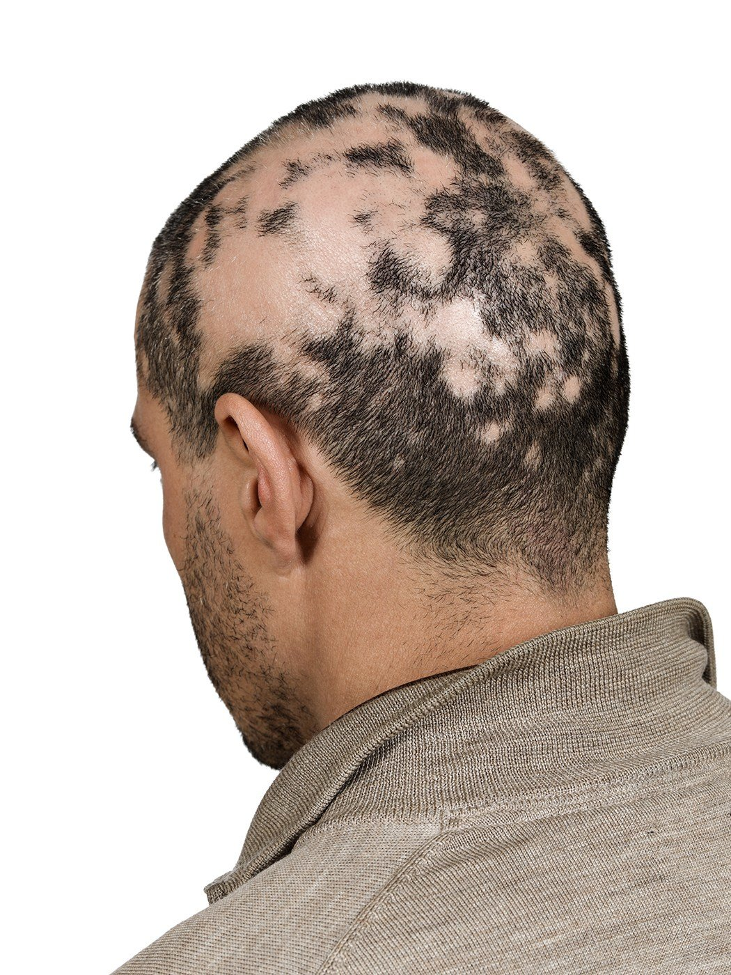 The Best Hair Toppiks Hair Regrowth For Men And Hair Loss Options Pictures