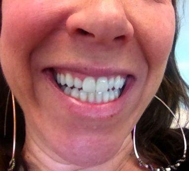 Teeth White Before