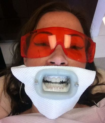 Teeth Whitening Mouth