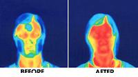 az arc-jóga milyen változás hoz a bőrödön