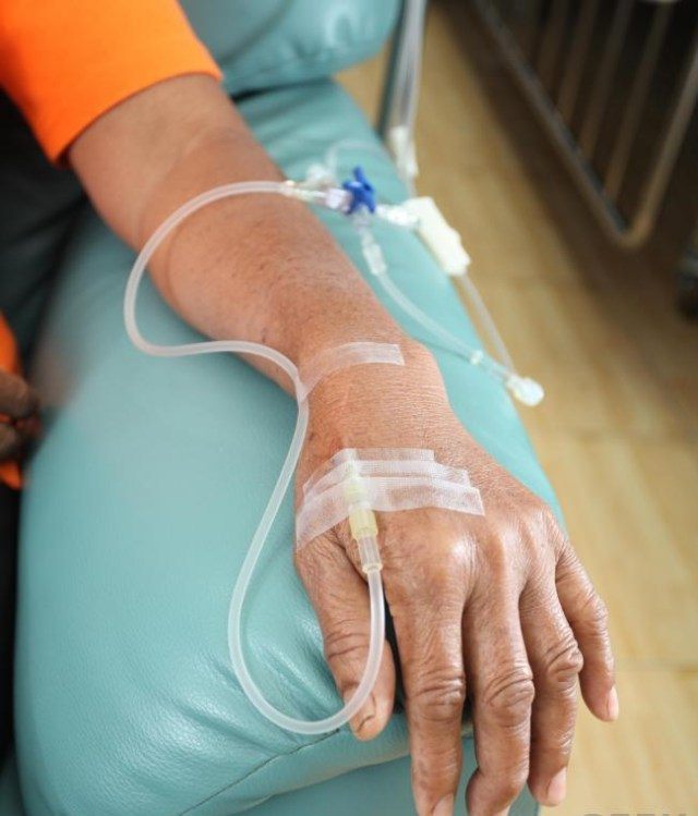 chemotherapy-hand-and-arm