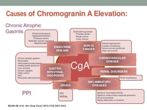 neuroendocrine cancer tumor markers)
