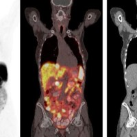 Neuroendocrine Cancer: Ga68 PET Scan - a game changer?