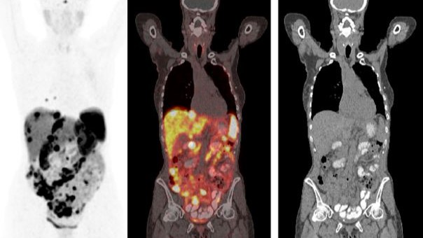Neuroendocrine Cancer: Ga68 PET Scan – a game changer?