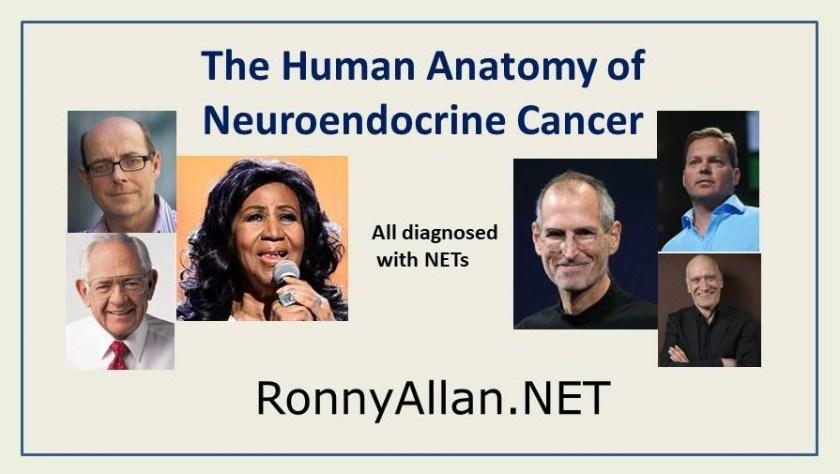The Human Anatomy Of Neuroendocrine Cancer Ronny Allan Living