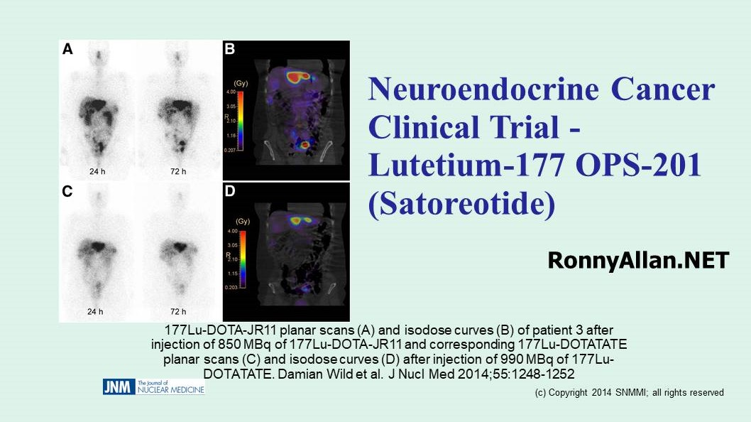 Neuroendocrine Cancer Clinical Trial - Lutetium-177 OPS-201 (Satoreotide)
