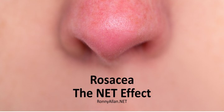 Rosacea – the NET Effect