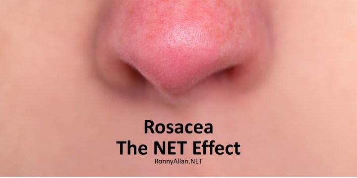 Rosacea – the NET Effect
