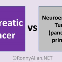 Pancreatic Cancer vs Neuroendocrine Tumors of the Pancreas