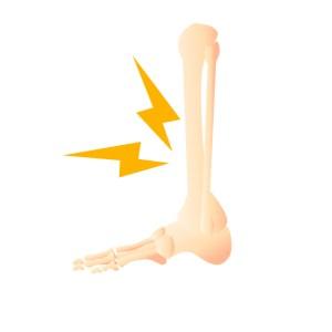 仙台市で変形性関節症に筋膜を治療する整体