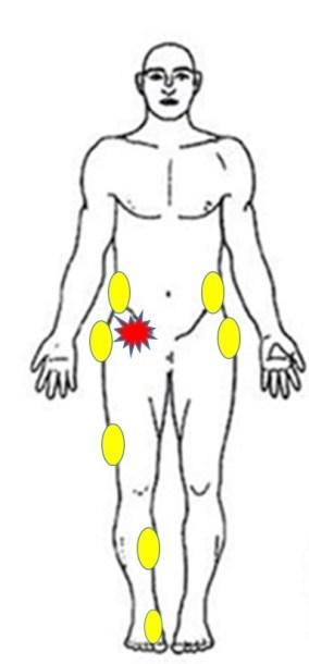 仙台の整体で股関節痛に筋膜への施術を実施したポイント