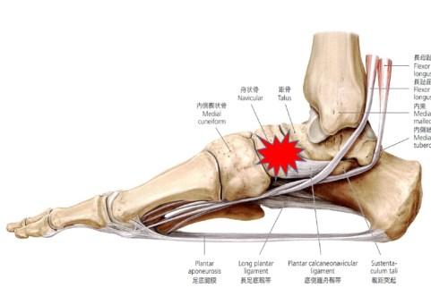 有痛性外脛骨の筋膜の治療ポイント