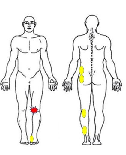 仙台で半月板の痛みに筋膜を施術する整体