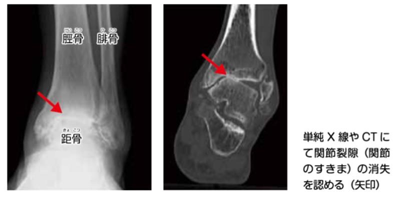 仙台市青葉区の整体で変形性足関節症の治療ポイント