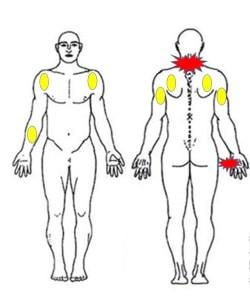 仙台で頚椎症に対して筋膜への施術を行う整体