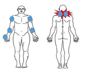 仙台の整体で緊張性頭痛に対して筋膜リリースしたポイント