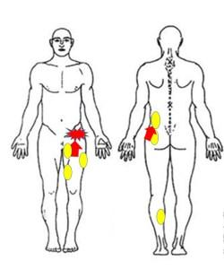 スキーで股関節が痛い方に筋膜調整