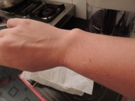 Right before I moved, I singed my arm hair in a gas stove fiasco, which was 99% hilarious and 1% terrifying.
