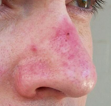 rosacea pictures: papules, pustules, red nose and acne : rosacea, Skeleton