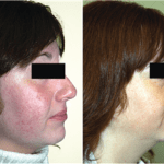 Rosacea and Doxium (Calcium Dobesilate)