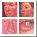 Rosacea Subtypes, How are they related?