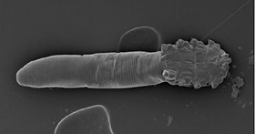 demodex-follicularum