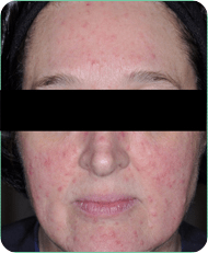 soolantra before and after pictures rosacea support group