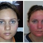 Severe Mirvaso Rebound Redness: Dermatitis Medicamentosa