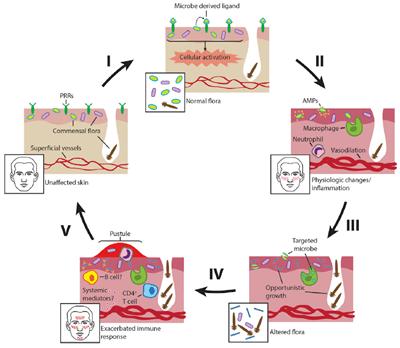 micro-organisms-rosacea
